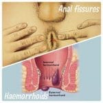 Heamorrhoids vs anal fissures
