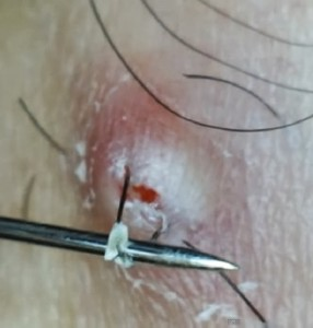 an ingrown hair removed with a pin