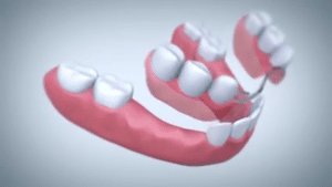 dentures hold bad breath bacteria