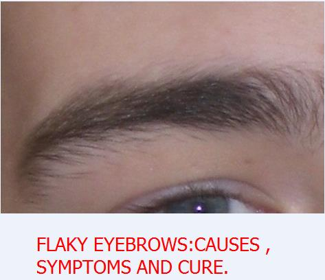 FLAKY EYEBROWS