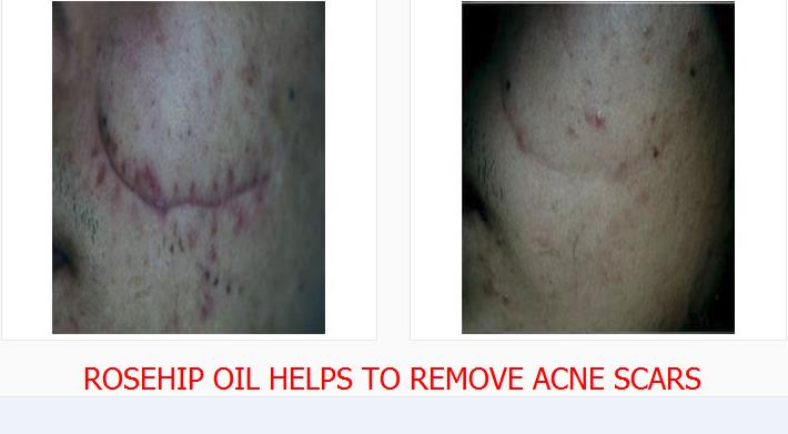 Natural Oils For Acne Scars