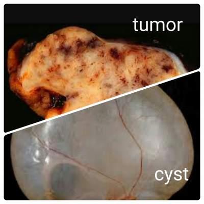 Cyst vs tumor