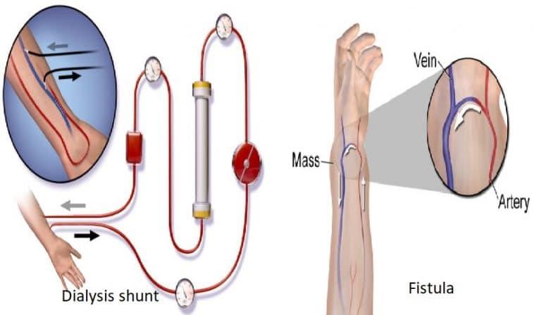 dialysis shunt and fistula