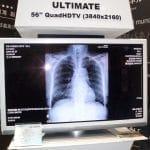 Digital Radiology ADVANTAGE