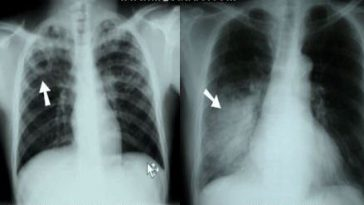 pneumonia and tuberculosis chest x rays
