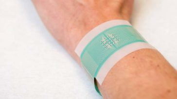 he patch that measures glucose in patients with diabetes developed by British researchers. UNIVERSITY OF BATH