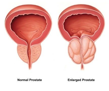 natural remedies for enlarged prostate gland